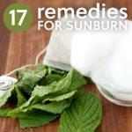 17 Home Remedies For Sunburn