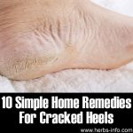 Top 10 Simple Home Remedies For Cracked Heels