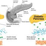 10 Foods That Help Heal The Pancreas
