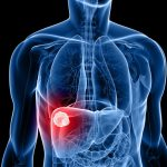 Liver Cancer Deaths Are Skyrocketing As Food Becomes Increasingly TOXIC Due To Pesticides And Herbicides