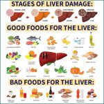 Fatty Liver Does Not Show Up In Scans Until It Is Too Late – Here Are 7 Early Warning Signs To Look Out For