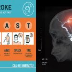 Study Finds Strokes Declined Significantly Among Men, But Not Among Women